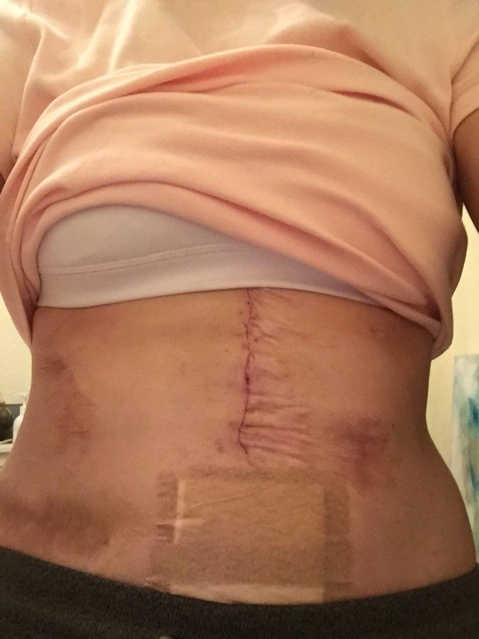 Après l'opération pour son hernie.